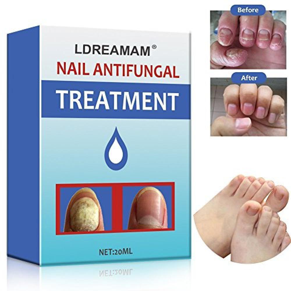 Ldreamam Nail Antifungal Treatment 20 ml   Approved Food